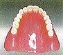 熱可塑性義歯
