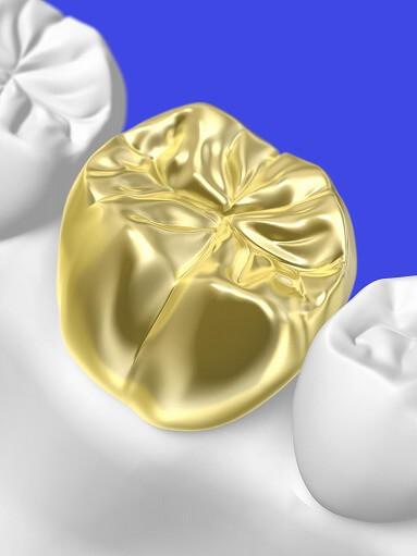 ゴールドクラウン(金の被せ物)