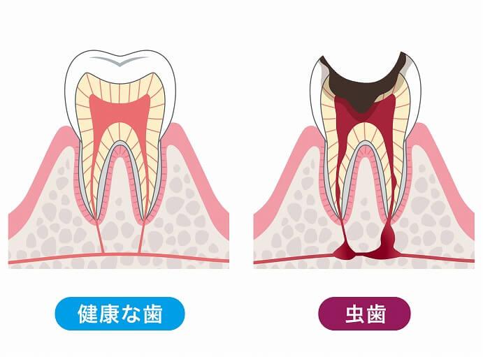 神経が死ぬと歯の寿命が短くなる