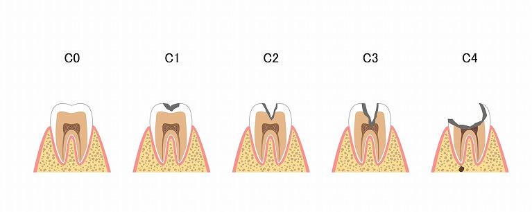 虫歯を放置すると起こるトラブル