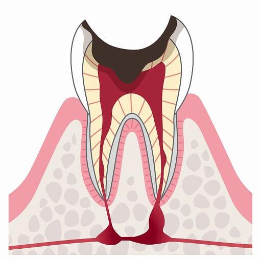C4(歯根だけが残った虫歯)