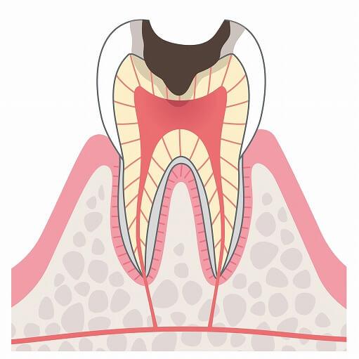 C3(歯髄まで達した虫歯)