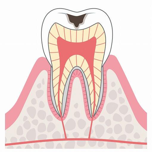 C2(象牙質まで達した虫歯)